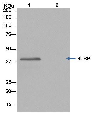 Immunoprecipitation - Anti-SLBP antibody [EPR12673] (ab181972)