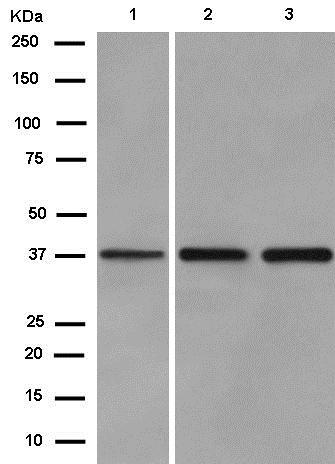 Western blot - Anti-SLBP antibody [EPR12673] (ab181972)