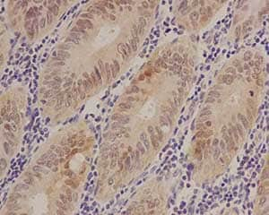 Immunohistochemistry (Formalin/PFA-fixed paraffin-embedded sections) - Anti-S100 alpha 6/PRA antibody [EPR13084] (ab181974)