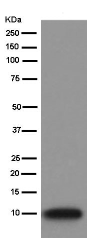 Western blot - Anti-S100 alpha 6/PRA antibody [EPR13084] (ab181974)
