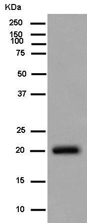 Western blot - Anti-C1orf93 antibody [EPR13703-31] (ab181978)