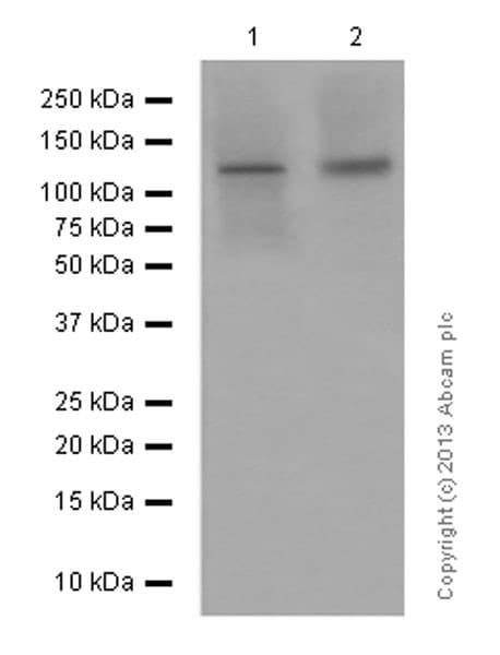 Western blot - Anti-Involucrin antibody [EPR13054] (ab181980)