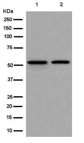 Western blot - Anti-DARS antibody [EPR14846(B)] (ab181985)