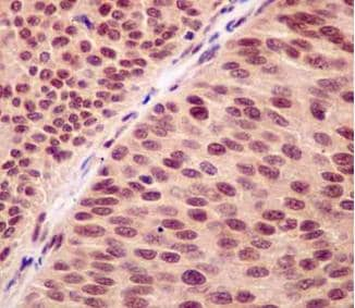 Immunohistochemistry (Formalin/PFA-fixed paraffin-embedded sections) - Anti-RNF7 antibody [EPR12001] (ab181986)