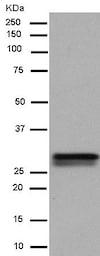 Western blot - Anti-Azurocidin antibody [EPR9503] (ab181989)