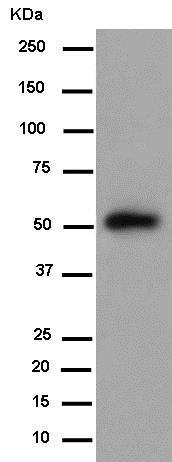 Western blot - Anti-TSP50 antibody [EPR8675(2)] (ab181993)