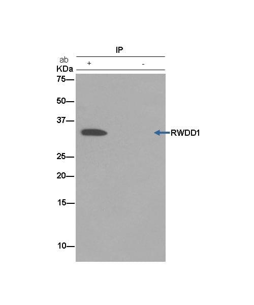 Immunoprecipitation - Anti-RWDD1 antibody [EPR13715(B)] (ab181994)