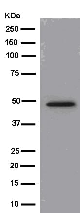 Western blot - Anti-HAPLN1 antibody [EPR6338] (ab181997)
