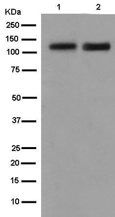 Western blot - Anti-NELL2 antibody [EPR13538] (ab182002)