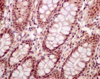Immunohistochemistry (Formalin/PFA-fixed paraffin-embedded sections) - Anti-DDX41 antibody [EPR14298] (ab182007)