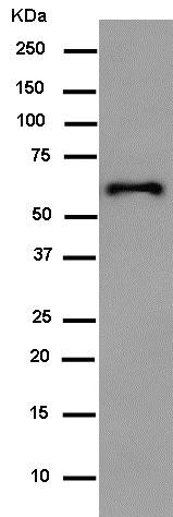 Western blot - Anti-HA tag antibody [EPR4095] (ab182009)