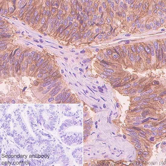 Immunohistochemistry (Formalin/PFA-fixed paraffin-embedded sections) - Anti-ENT1 antibody [SP120] (ab182023)