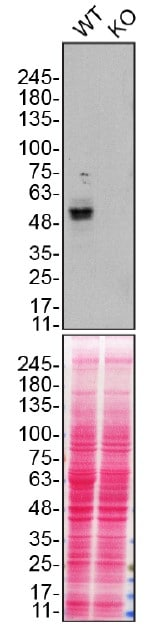 Western blot - Anti-ENT1 antibody [SP120] (ab182023)