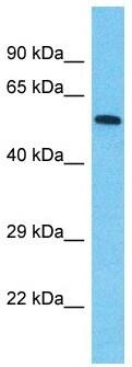 Western blot - Anti-SPATA20 antibody - C-terminal (ab182089)