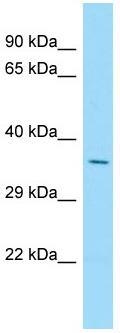 Western blot - Anti-SLC34A1 antibody - N-terminal (ab182099)
