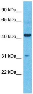 Western blot - Anti-TRAAK antibody - N-terminal (ab182107)