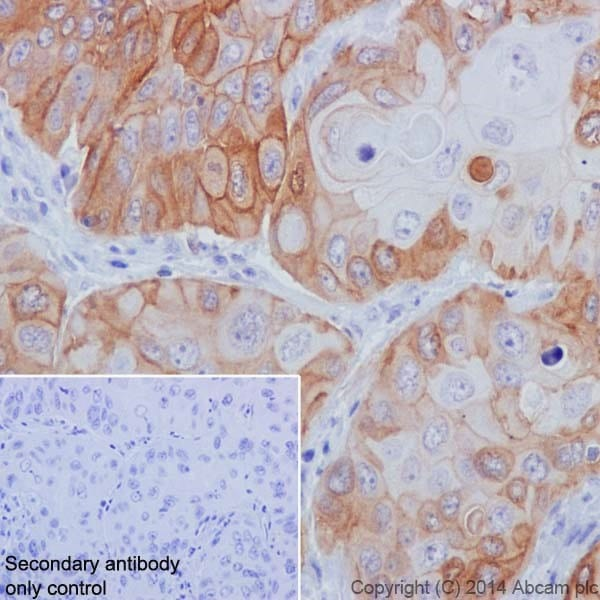 Immunohistochemistry (Formalin/PFA-fixed paraffin-embedded sections) - Anti-Integrin beta 4 antibody [EPR17517] (ab182120)