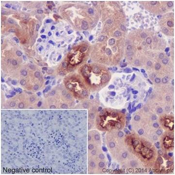 Immunohistochemistry (Formalin/PFA-fixed paraffin-embedded sections) - Anti-PKC delta + PKC theta antibody [EPR17074] (ab182127)
