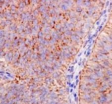 Immunohistochemistry (Formalin/PFA-fixed paraffin-embedded sections) - Anti-REA antibody [EPR14523] (ab182139)