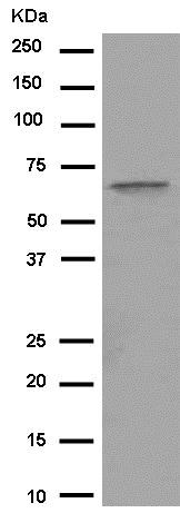 Western blot - Anti-C4BPA antibody [EPR14781(B)] - C-terminal (ab182140)