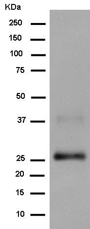 Western blot - Anti-Prostaglandin D Synthase (Lipocalin)/PDS antibody [EP12357] (ab182141)