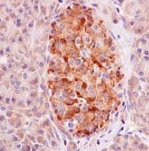 Immunohistochemistry (Formalin/PFA-fixed paraffin-embedded sections) - Anti-GPD2 antibody [EPR14260] (ab182144)