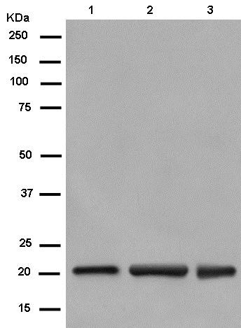Western blot - Anti-Nucleoside triphosphate phosphohydrolase antibody [EPR14325-50] - N-terminal (ab182155)