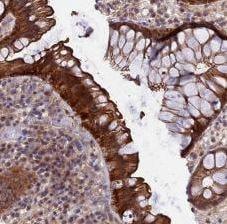 Immunohistochemistry (Formalin/PFA-fixed paraffin-embedded sections) - Anti-KIAA1211 antibody (ab182175)