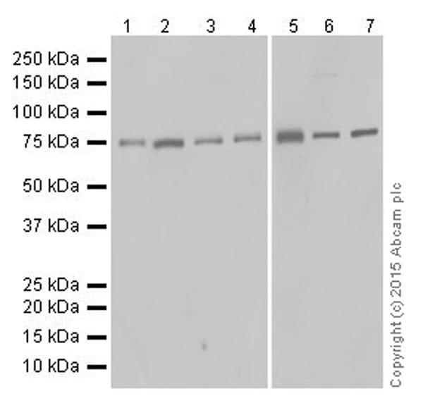 Western blot - Anti-Protein CASP antibody [EPR18806] (ab182216)