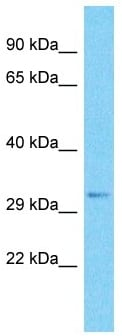 Western blot - Anti-SRRM2 antibody - C-terminal (ab182251)
