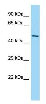 Western blot - Anti-GPATCH2 antibody - N-terminal (ab182327)