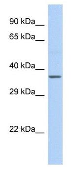 Western blot - Anti-Cytochrome b antibody - C-terminal (ab182330)