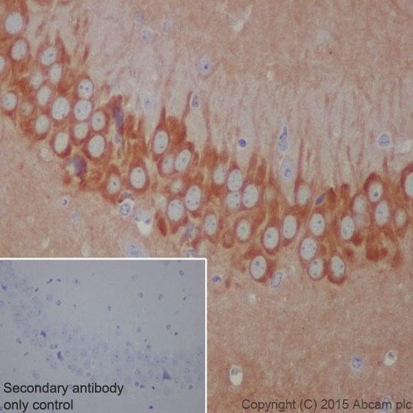Immunohistochemistry (Formalin/PFA-fixed paraffin-embedded sections) - Anti-Phospholipase C beta 1/PLCB1 antibody [EPR19085] (ab182359)