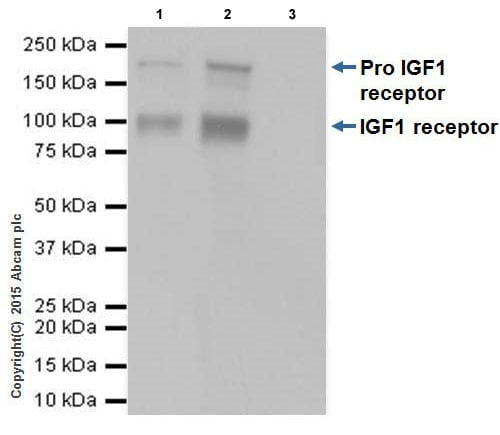 Immunoprecipitation - Anti-IGF1 Receptor antibody [EPR19322] (ab182408)