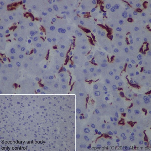 Immunohistochemistry (Formalin/PFA-fixed paraffin-embedded sections) - Anti-CD163 antibody [EPR19518] (ab182422)