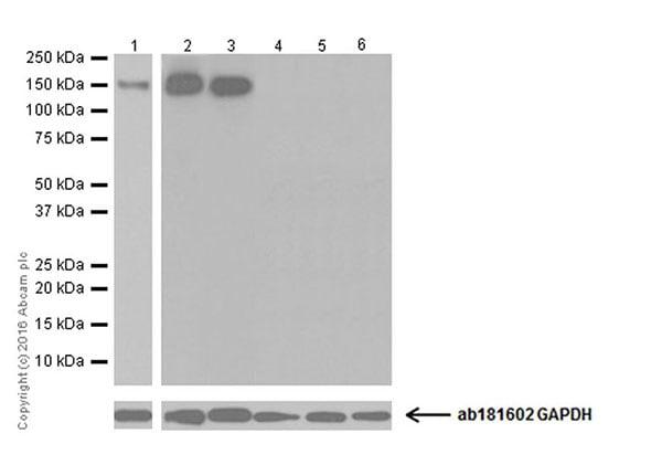 Western blot - Anti-CD163 antibody [EPR19518] (ab182422)