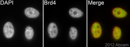 Immunocytochemistry/ Immunofluorescence - Anti-Brd4 antibody [EPR5150(2)] - BSA and Azide free (ab182446)