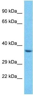 Western blot - Anti-SPSB3 antibody - C-terminal (ab182462)