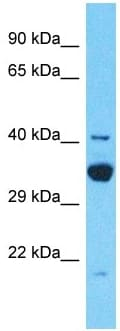 Western blot - Anti-TDRD12 antibody - C-terminal (ab182463)