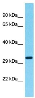 Western blot - Anti-OR9G9 antibody - C-terminal (ab182467)