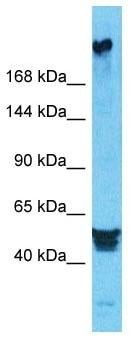 Western blot - Anti-PREX2 antibody - N-terminal (ab182482)