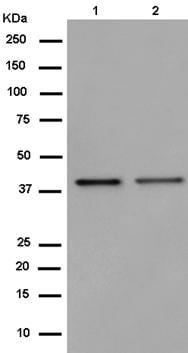 Western blot - Anti-GPR182 antibody [EPR14327] (ab182555)