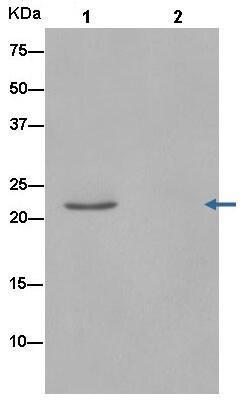Immunoprecipitation - Anti-RPL9 antibody [EP13752] (ab182556)