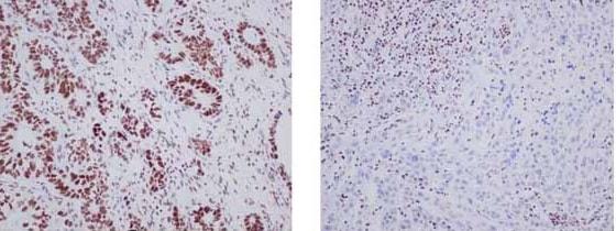 Immunohistochemistry (Formalin/PFA-fixed paraffin-embedded sections) - Anti-ARID1A antibody [EPR13501] (ab182560)