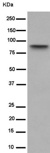 Western blot - Anti-BIN1 antibody [EPR13463] (ab182562)
