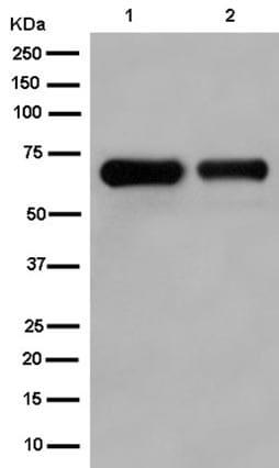 Western blot - Anti-Collagen X antibody [EPR13044] (ab182563)