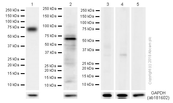 Western blot - Anti-Collagen X antibody [EPR13044] (ab182563)