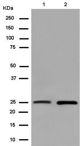 Western blot - Anti-C15orf24 [EPR14097] antibody (ab182568)