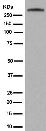 Western blot - Anti-GARNL1 antibody [EPR13592-38] (ab182570)