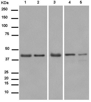 Western blot - Anti-PDK3 antibody [EP12309] (ab182574)